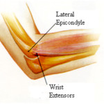 A Primer on Tennis Elbow